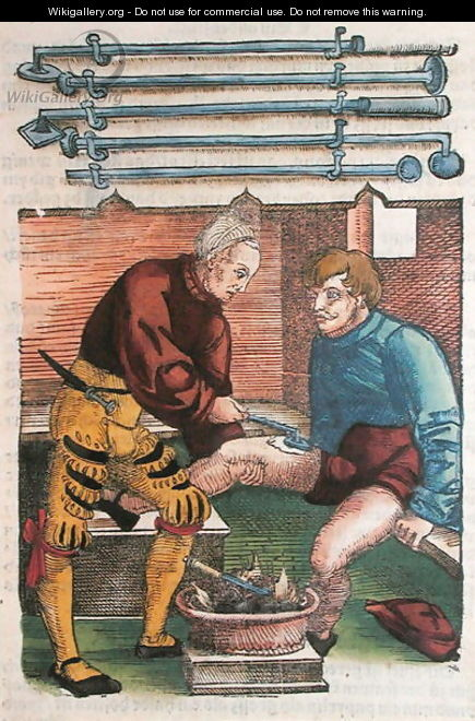 Cauterisation, illustration from Feldtbuch der Wundartzney by Hans von Gersdorff, c.1540 - Hans or Johannes Ulrich Wechtlin