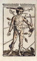 XVIIIv The Wound Man, from the Feldtbuch der Wundartzney by Hans von Gersdorff, 1517 - Hans or Johannes Ulrich Wechtlin