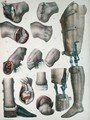 Amputations and Prosthetics - Nicolas Henri Jacob